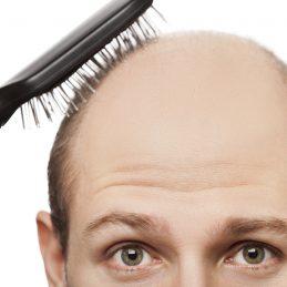 come prevenire la calvizie, uomo che si tocca la testa rasata con la spazzola